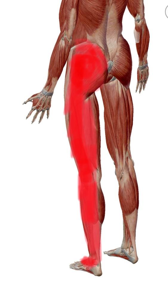 坐骨神経痛 (2)